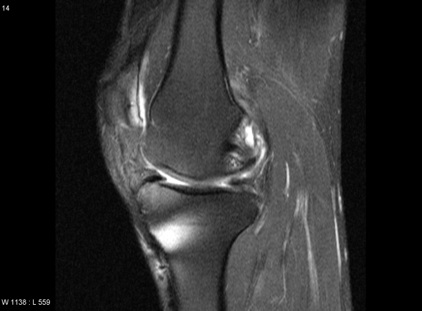 knee mri01 Gout Swollen Ankles Causes